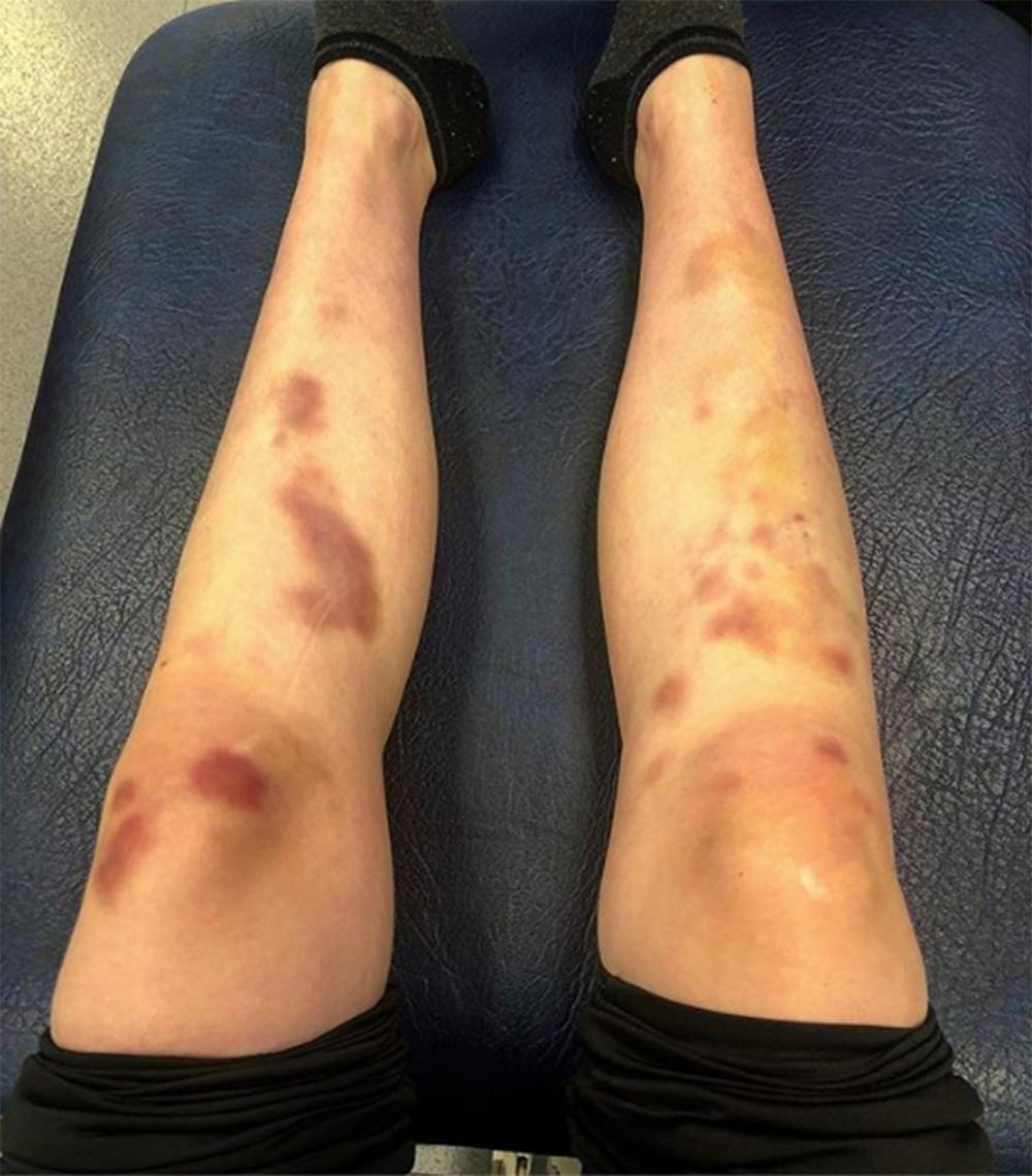 La foto de la Lauren Williams que desnuda la realidad del Taekwondo